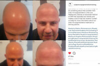 BALDING  or  THINNING HAIR?  - INSTANT RESULTS - GUARANTEED