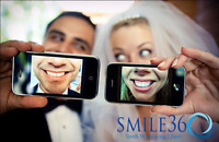 Smile360 Professional Teeth Whitening