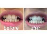 Teeth whitening only £40 per person!!
