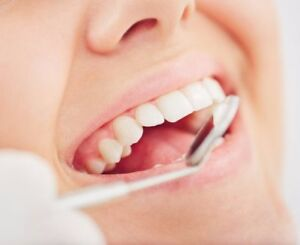 Dental Cleaning For Low Cost!
