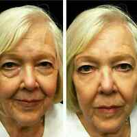 Instantly Ageless!!