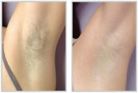 JUST FOR $40.00 REMOVE YOUR UNDERARM HAIR - LASER HAIR REMOVAL