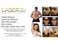 Professional Tattoo Removal, Laser Hair Removal,Lesions, Acne Scars by Insured Medical Professionals