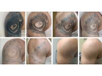 Laser tattoo removal & ipl permanent Hair removal