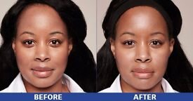 Seeking Models / Participants for a Skin Treatment Campaign