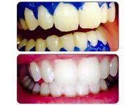 Advanced laser teeth whitening £60