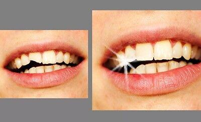 2x Provisorischer Zahnersatz Granulat vorläufige Zahn Reparatur Zahnlücke 400stk