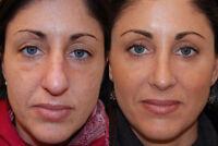 IPL Photo Facial. The Notox Treatment