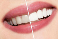 Teeth Whitening Treatment Mississauga - Aims Dentistry