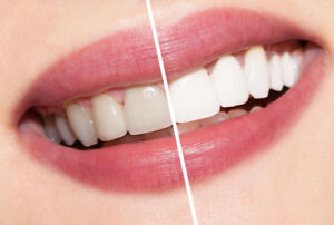 Picture perfect smiles! Professional teeth whitening system