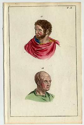 Physiognomie-Physiognomik-Anatomie-Medizin kol.Kupferstich 1800