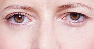 Double Eyelid 144 Streifen Tape Schlupflid-Ade Augenlid-Lifting 'breit' stripes
