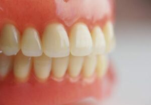Dentures (free consultation and affordable prosthesis)