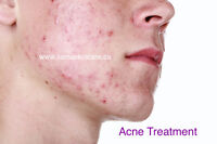 Facial & Acne Scars Treatments - Orleans