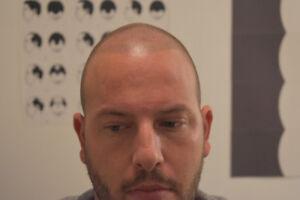 Hair transplant toronto kijiji