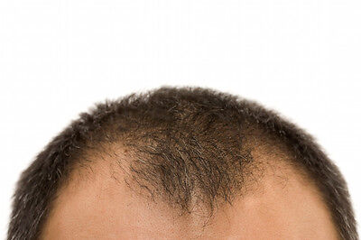 Ist das Kopfhaar auf dem Rückzug, solle Mann handeln. (© Thinkstock via The Digitale)