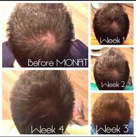 Career in Hair Regrowth Industry - MONAT