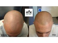 Models Required for Hair Loss Treatment, SMP Micro-pigmentation the Ultimate Hair Loss Treatment