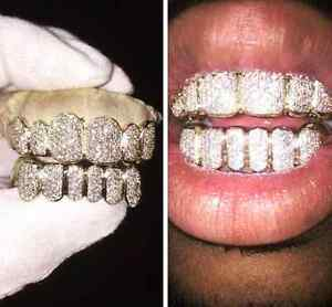 GOLD GRILLZ - CUSTOM GOLD TEETH GRILLS