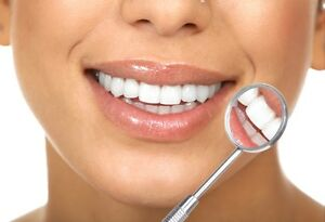 Professional Teeth Whitening and Dental Cleanings Kitchener / Waterloo Kitchener Area image 4