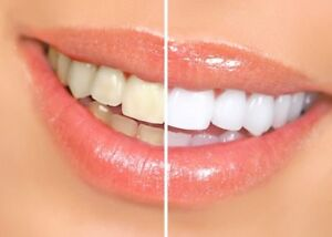 Professional Laser Teeth Whitening - One, Two, Three, FREE!