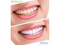 Amazing Prices on Teeth Whitening- £69 for Full Set- London Salon - Angel Islington