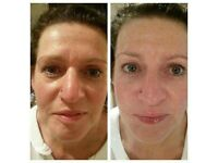 Galvanic face spa Amazing Results!