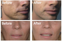 Acne scar removing treatment microneedling treatment $175