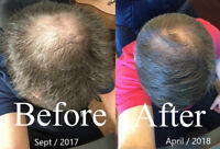 Volunteers needed to test hair-loss treatment product