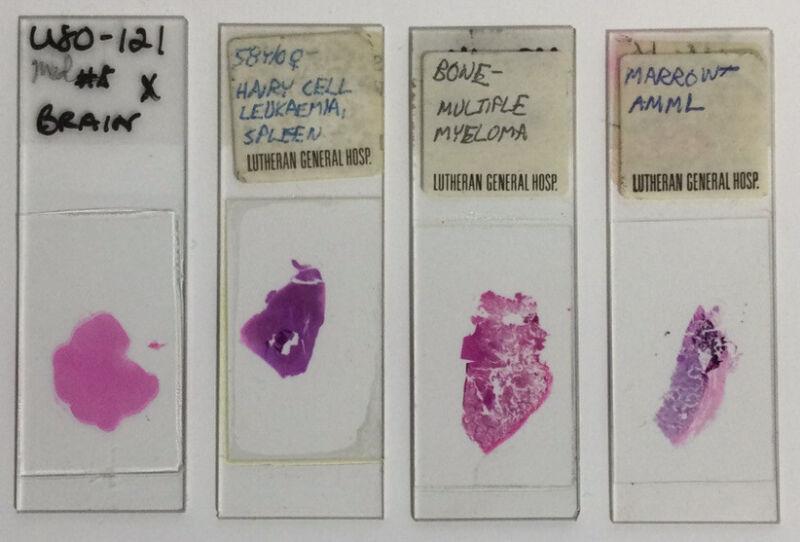 Vintage Medical Microscope slide Human Brain Spleen Leukemia Bone Marrow Myeloma
