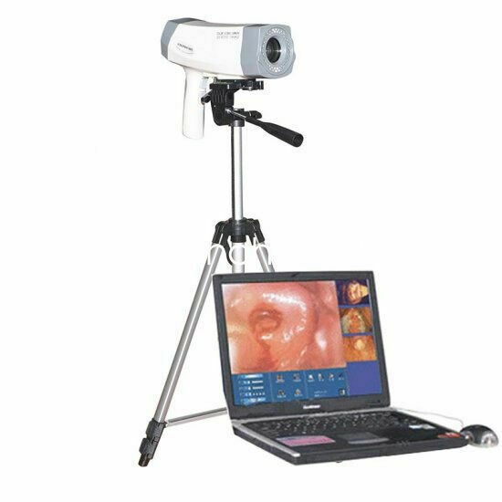 A 850000pixel Digital Electronic Colposcope+Sony Color Video  Camera Gynaecology
