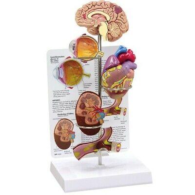 Hypertension Organ Gpi Anatomical Model Set 4-pc Lfa 4000