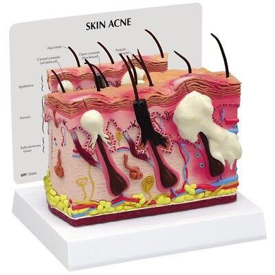 Acne Skin Gpi Anatomical Model Lfa 3751