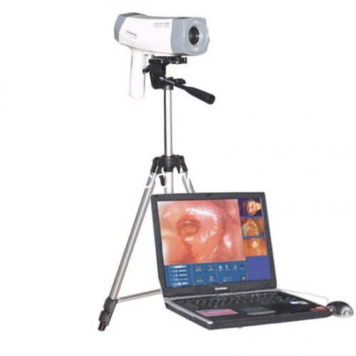 Accurate Digital Video Electronic Colposcope Camera 480000 pixels Tripod Surgery