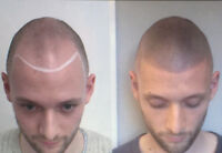 Are You suffering from Male Pattern Baldness We can help.....