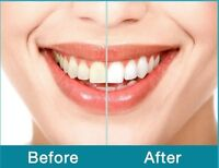 $39 - Teeth Whitening for 30mins!!!