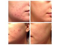 Acne treatment for just £35 using Galvanic and High Frequency facials