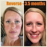 Your Skin will thank you!!!