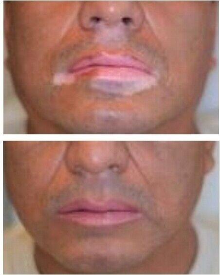 1 inch Vitiligo treatment : Lamp and Psoralen phototherapy