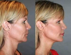 Beauty Profile Anti- Ageing Facial Treatment $50 | Beauty Treatments