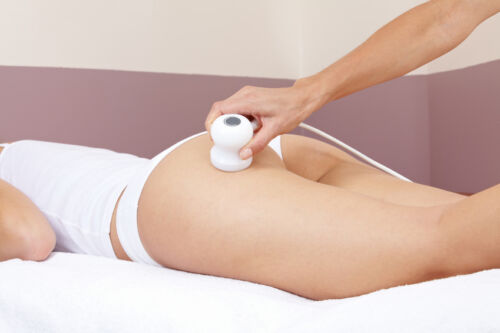 Cellulite: Entstehung, Behandlung und unterstützende Maßnahmen