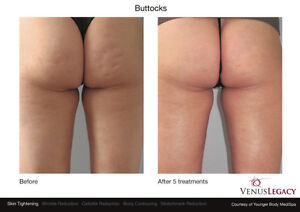 Get rid of cellulite Regina Regina Area image 1