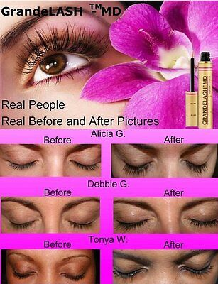 Купить GrandeLash MD 2ml 3-month supply AUTHORIZED MASTER DEALER Grande Lash EXP 06/20