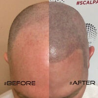 SMP Scalp Hair Tattoo For Men and Women with Hair Loss