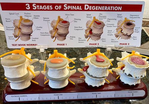Chiropractic Subluxation Model