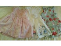 3 baby girls dresses