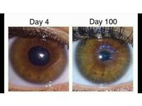 Iridology Analysis, Assessment, Treatment and Health