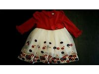 Baby Dresses x 2