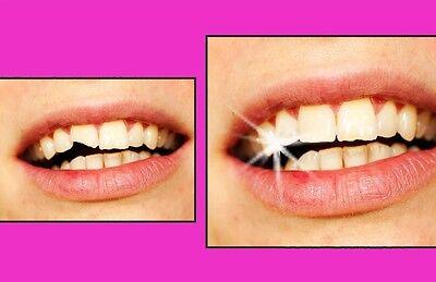 Provisorischer Zahnersatz Granulat Zahn Reparatur Tooth 200 St dent diente
