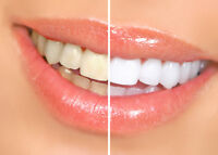 FREE Teeth Whitening for New Dental Patients